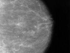 Rak piersi wykryty w mammografii