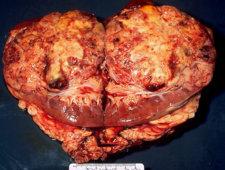 Rak nerki – zdjęcia