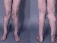 Koślawe kolana - zdjęcia