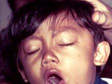 Mały pacjent z krztuścem