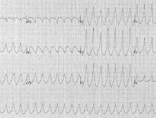 Wyniki badania EKG