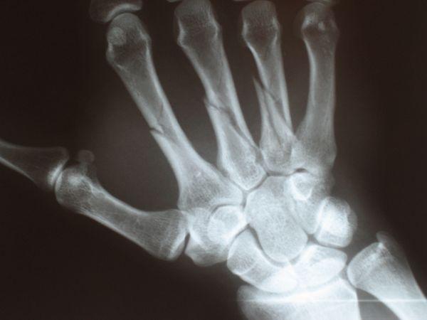 Złamanie kości śródręcza - zdjęcie RTG