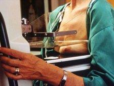 Badanie mammograficzne - zdjęcie