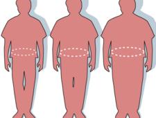 Przykłady sylwetek zdrowych i otyłych pacjentów