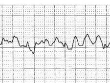 Wyniki badania EKG z diagnozą migotania komór
