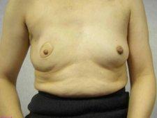 Rekonstrukcja piersi bez implantów