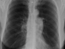 Zdjęcie rentgenowskie chorego na rozedmę płuc