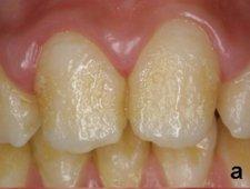 Przebarwienia zębów - zdjęcia