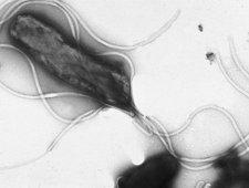 Helicobacter pylori pod mikroskopem