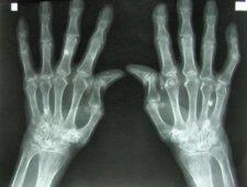 Reumatoidalne zapalenie stawów - zdjęcie rentgenowskie dłoni