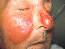 Róża na skórze twarzy mężczyzny