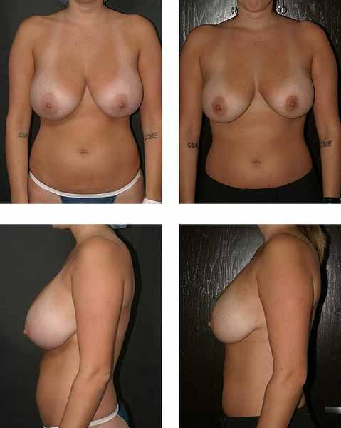 Efekty zabiegu zmniejszenia piersi