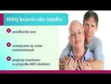 Nowe osiągnięcia w leczeniu nowotworów żołądka