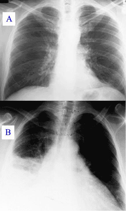 Zdjęcie rentgenowskie chorego na zapalenie płuc