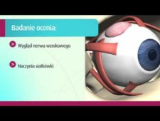 Ocena dna oka