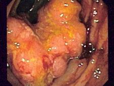 Rak okrężnicy zdiagnozowany podczas badania na chorobę Crohna