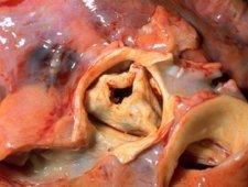 Zmiany w zastawce aortalnej