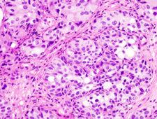 Obraz histologiczny raka pęcherza moczowego