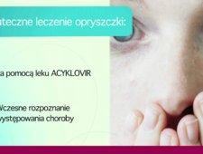 Leczenie opryszczki - objawy choroby
