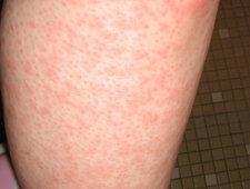 Krostki na nodze po depilacji