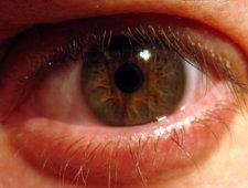 Zmęczone oko