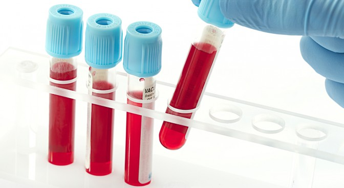 http-www-shutterstock-com-pl-pic-154830329-stock-photo-blood-samples-in-a-rack-html-src-ge-zbw3i7nmwdglxnyqmzq-1-0_0329.jpg