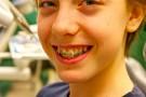 Korekta kształtu zębów