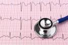EKG - podstawowe badanie pracy serca