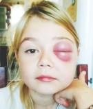 Olunia - NFZ odmówił refundacji leku ratującego jej życie