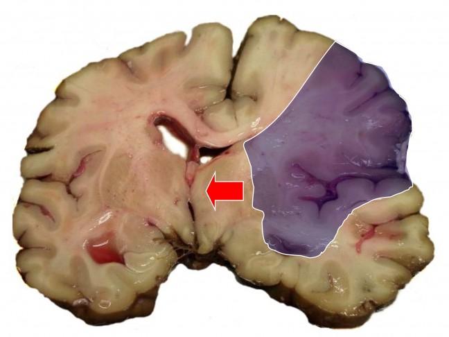 Udar mózgu - zdjęcia